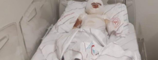 Siirt'te üzerine kaynar çorba dökülen 4 yaşındaki Sakine Ö., Ağır yaralandı.